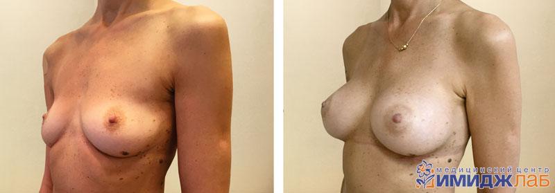 Сколько стоит операция по увеличению груди киев